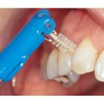 Oral-B / Oral B Interdenal Tapered Refill Bridge Brace Wide Space Toothbrush