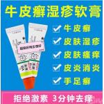 (现货) 日本處方  vg牛皮癣️ 湿疹药膏 濕疹VG軟膏 湿疹膏